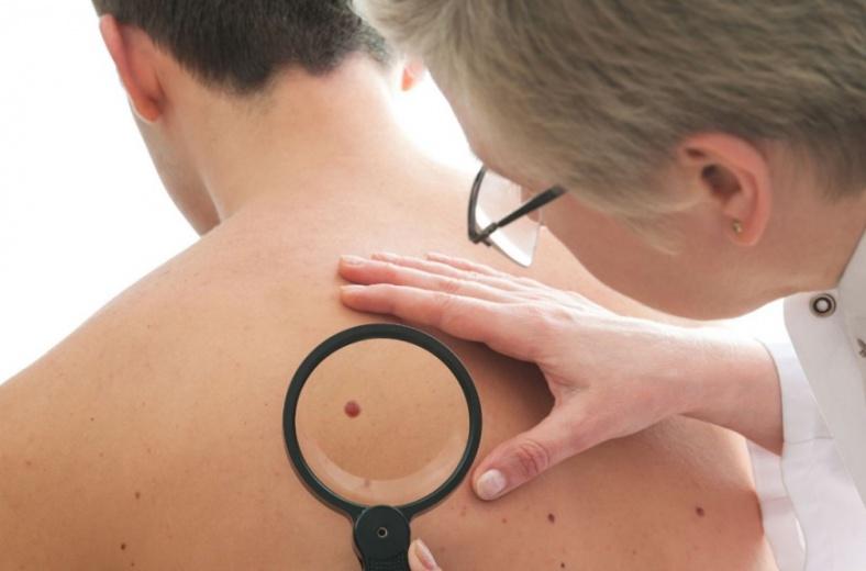 В Липецке проведут акцию, посвященная ранней диагностике и профилактике меланомы кожи