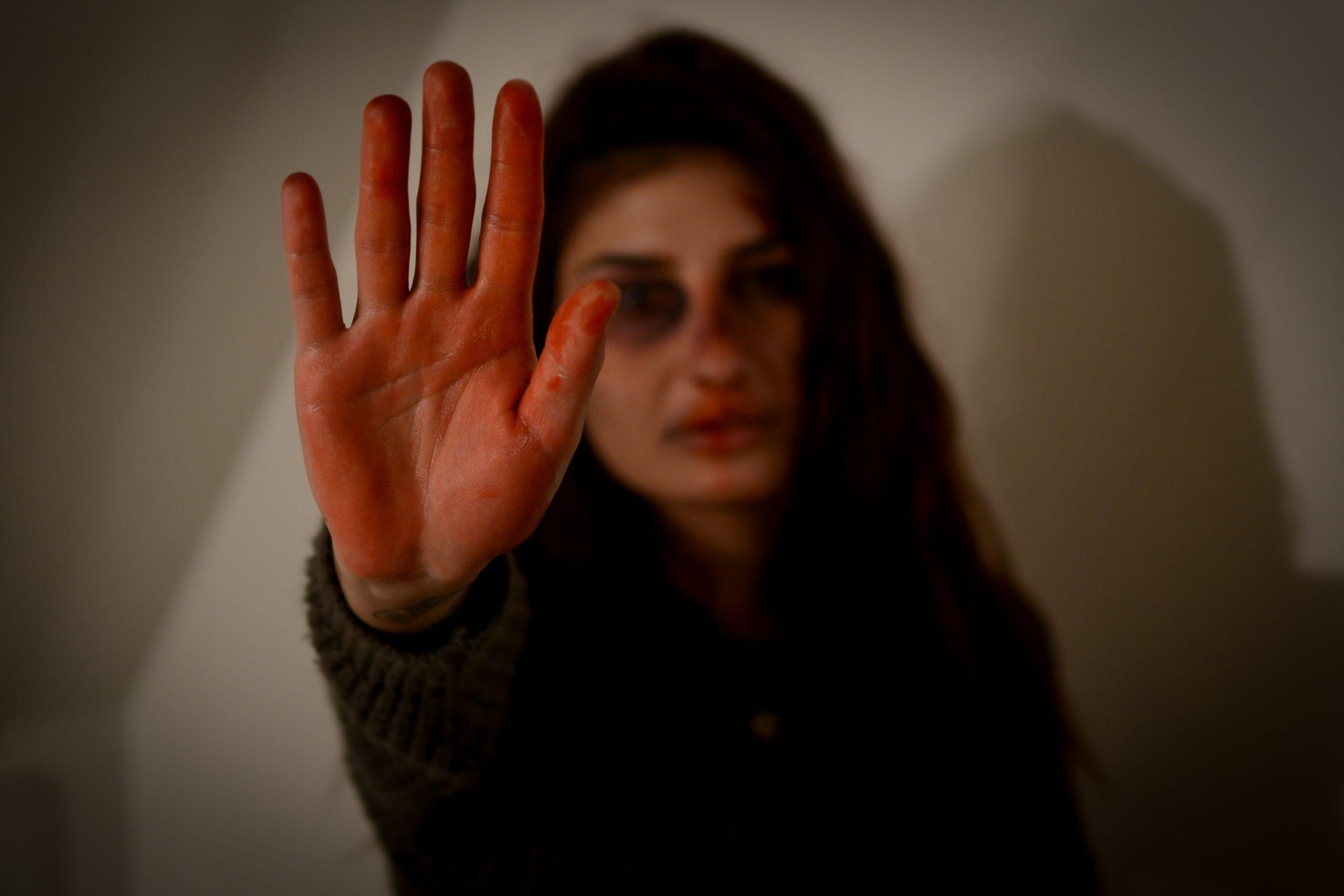 Депутаты попросили генпрокурора проверить данные о росте жалоб на домашнее насилие