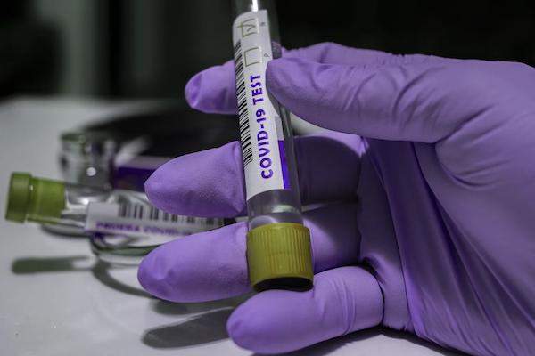 Росздравнадзор одобрил производство сверхточного теста на коронавирус